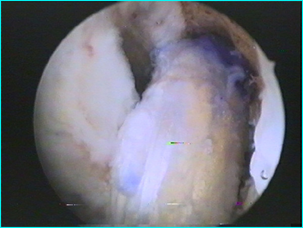 Artro crociato intervento