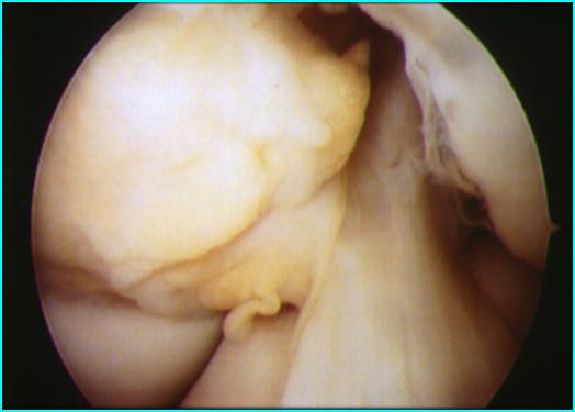 Artro ginocchio
