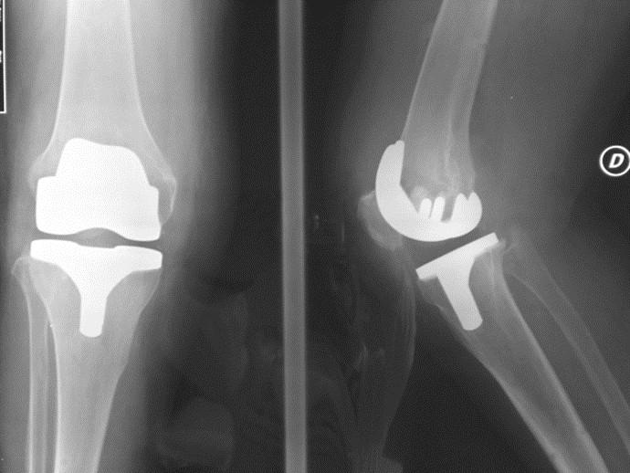 Impianto ginocchio