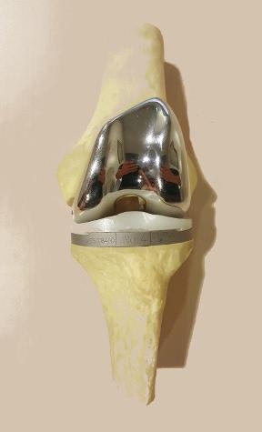 Protesi ginocchio mod